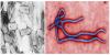 บทความ มารู้จักวัคซีนป้องกันอีโบล่ากันเถอะ